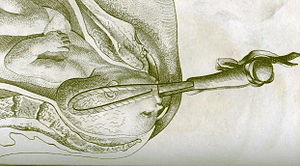"""Forceps.Smellie"" by http://en.wikipedia.org/wiki/User:Ekem - http://en.wikipedia.org/wiki/Image:Forceps.Smellie.jpg. Licensed under Public domain via Wikimedia Commons - http://commons.wikimedia.org/wiki/File:Forceps.Smellie.jpg#mediaviewer/File:Forceps.Smellie.jpg"